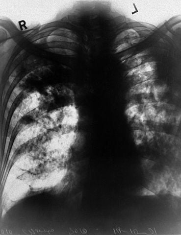 X-ray of slate pneumoconiosis sufferer's lungs